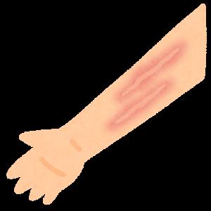 この傷跡なんとかなりますか?😥(ケロイドや瘢痕の話)